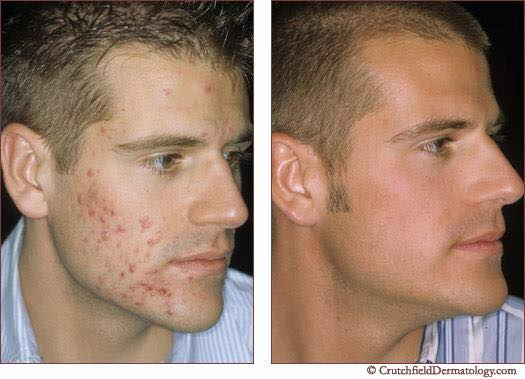Acne Treatment with Environ