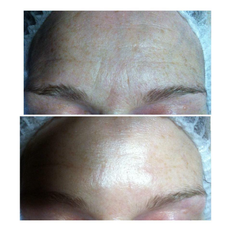 Crystal Clear Facial essex
