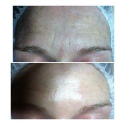 Crystal Clear Facial essex