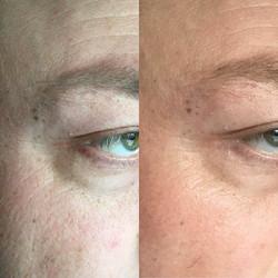 mens facials skincare