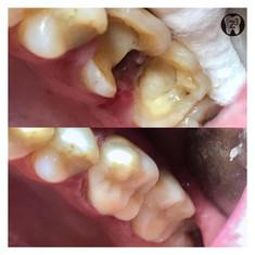 На фото потрясающий результат художественной реставрации сильно разрушенного зуба с помощью композитной вкладки.