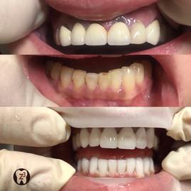 👉🏻На верхней челюсти произвели замену металлокерамических коронок на безметалловые, которые идеально подходят для передних зубов. ⠀ 👉🏻На нижней челюсти старые реставрации заменены на керамические виниры Емах. Вот относительно виниров угадали многие😄