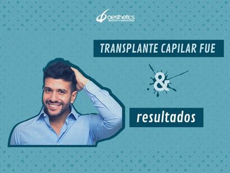 Transplante capilar FUE e resultados