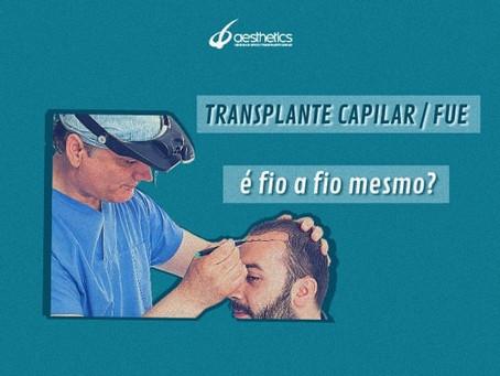 """TRANSPLANTE CAPILAR FUE...É """"FIO A FIO"""" MESMO?"""