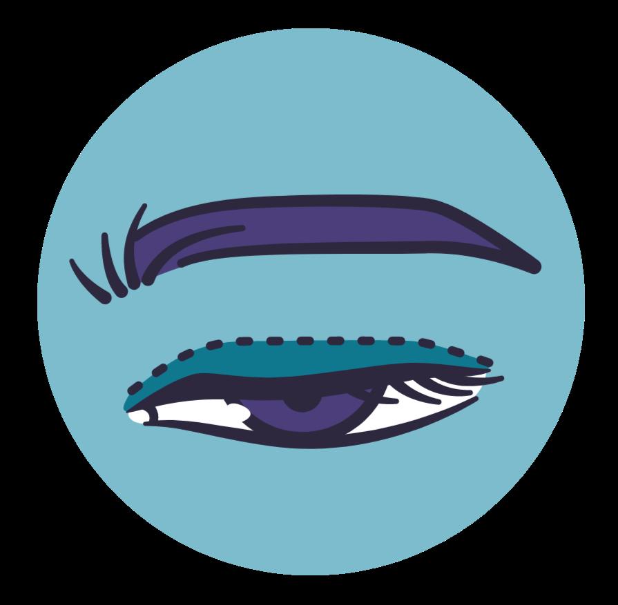 imagem ilustrativa da ptose palpebral