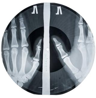Bone Music: Soviet Forbidden Records