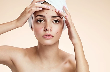 EVERYTHING you need to know about skin breakouts and Skin PhD Queenswood!