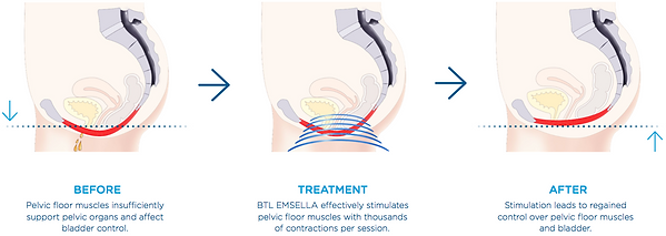 Emsella before and after pelvic floor muscles