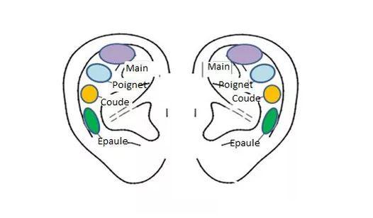 Réflexologie Auriculaire