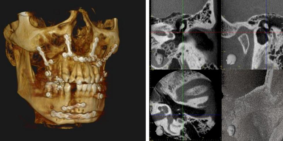 DVT-Kurs am Universitätsspital Basel, MKG-Chirurgie 2021 / Ausgebucht!