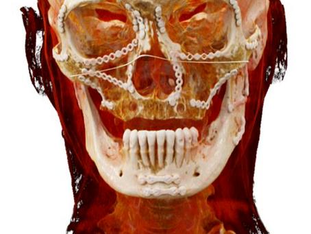 35. Jahrestagung der Schweizerischen Gesellschaft für Mund-, Kiefer- und Gesichtschirurgie