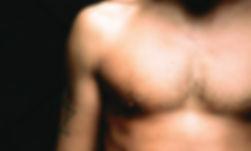 Ginecomastia, cirurgia, aumento de mamas