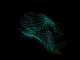 Noise Form
