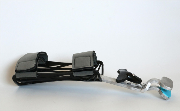 Hand prosthesis-1