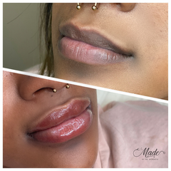 Before and after lip neutralization