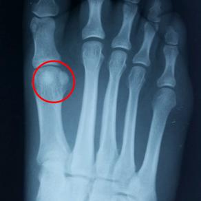 Sesamoid Injuries