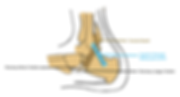 peroneus tendon.png