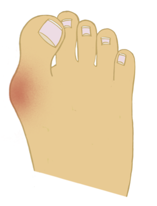 How To Avoid Bunion Surgery