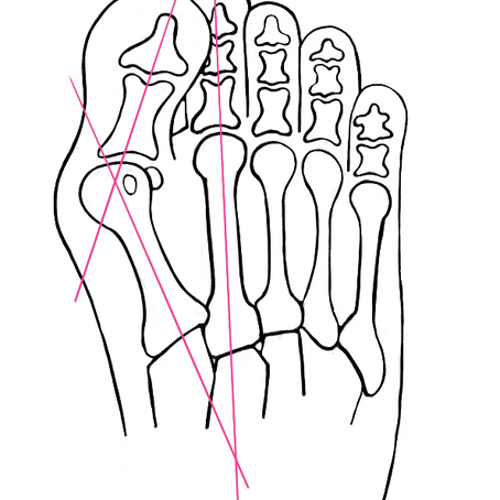 The Who, What, Where, When, Why, & How of Bunions