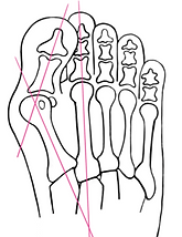 xr bunion.png