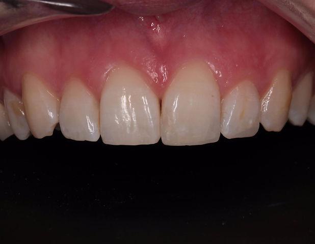 reparation dent ébréchée