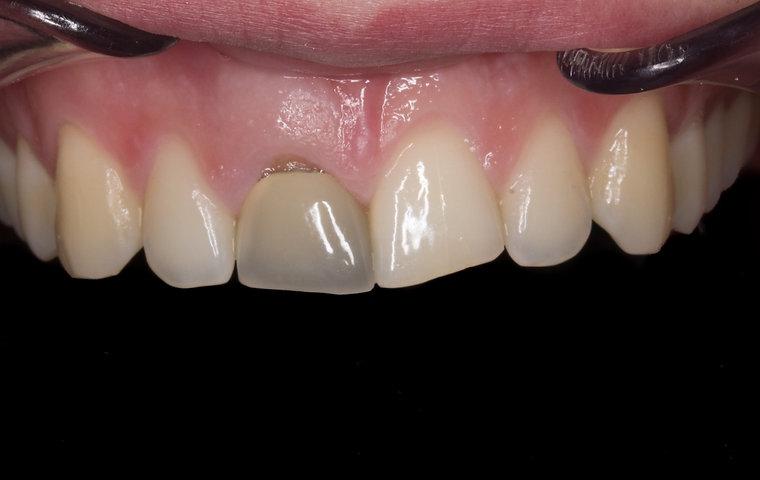 dent dévitalisée cassée