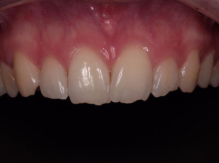 dent ébréchée