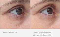 Tempsure Envi Before & After Eye Wrinkles
