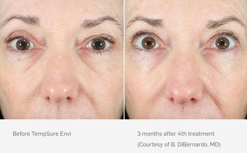 Tempsure Envi Before & After Eye Wrinkles #2.png.png