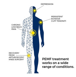magna-wave-what-is-a-PEMF-treatment-wide