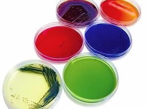 Enfermedades infecciosas y el laboratorio clínico