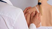 Skin Check Clinics