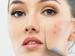 Acne- Is it possible to have beautiful skin naturally?