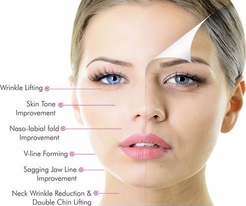 HIFU Treatment | Devine Beauty Therapy Nelson, Semi