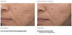 acne-with-post-inflammatory-hyperpigmentation.jpg