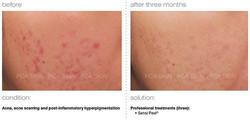 acne-acne-scarring-post-inflammatory-hyperpigmentation.jpg