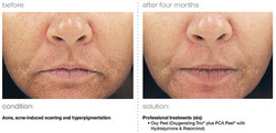 acne-acne-induced-scarring-hyperpigmentation.jpg