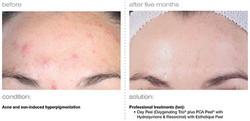 acne-sun-induced-hyperpigmentation.jpg