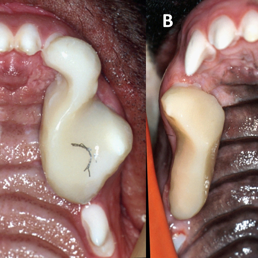 Orthodontic Therapy for Malocclusion