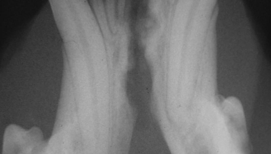 Mandibular symphysis separation (x-ray)