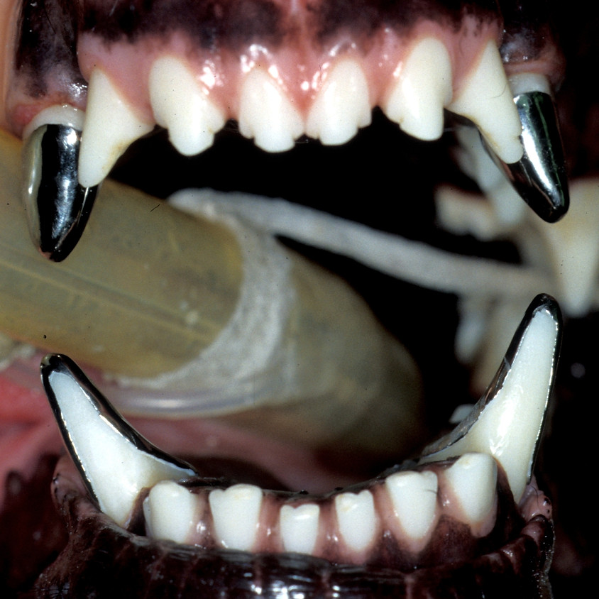 Restorations and Prosthodontic Crowns