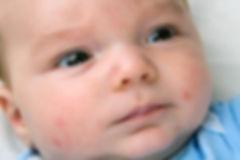 Help with baby eczema