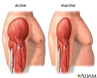 muscle atrophy.jpg