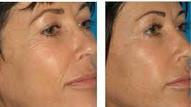 Peeling / Wrinkles