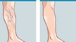 Do you know Varicose Veins in your body?