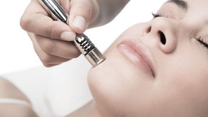 Why Your Face needs Micro Dermabrasion?