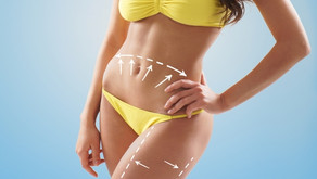 Women approaching 30: How do you get rid of cellulite?