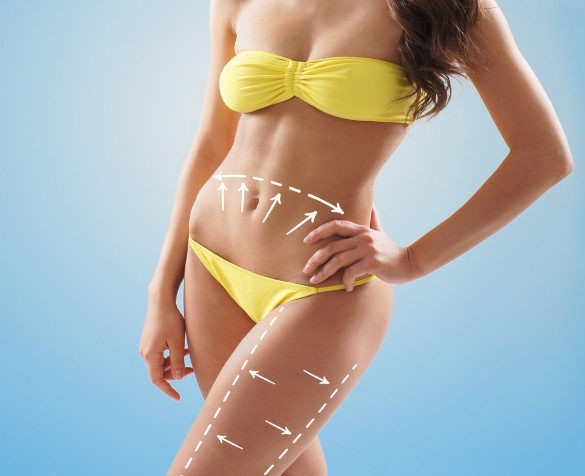 Cellulite dimples affect Body n Health