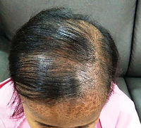Ozone treatment for hair regrowth