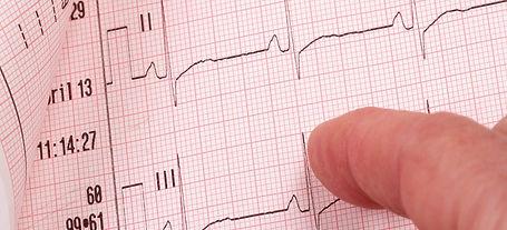 Cardiac Screening Ireland .jpeg